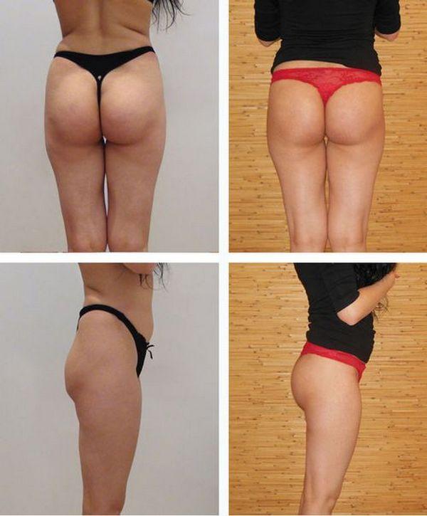 фото ягодицы до и после упражнений
