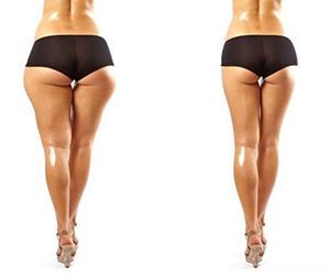 Как убрать жир с ног внутренней стороны