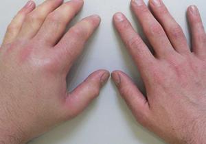 После подтягивания болят суставы рук