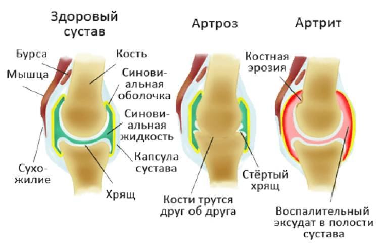 Бубновский артроз коленного сустава