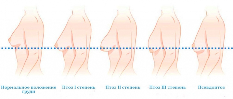 Женская грудь после кормления
