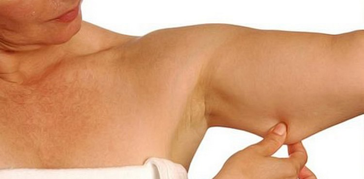 Упражнения для рук чтобы убрать обвисшую кожу