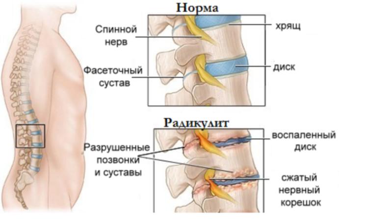 артроз позвоночника тазобедренный